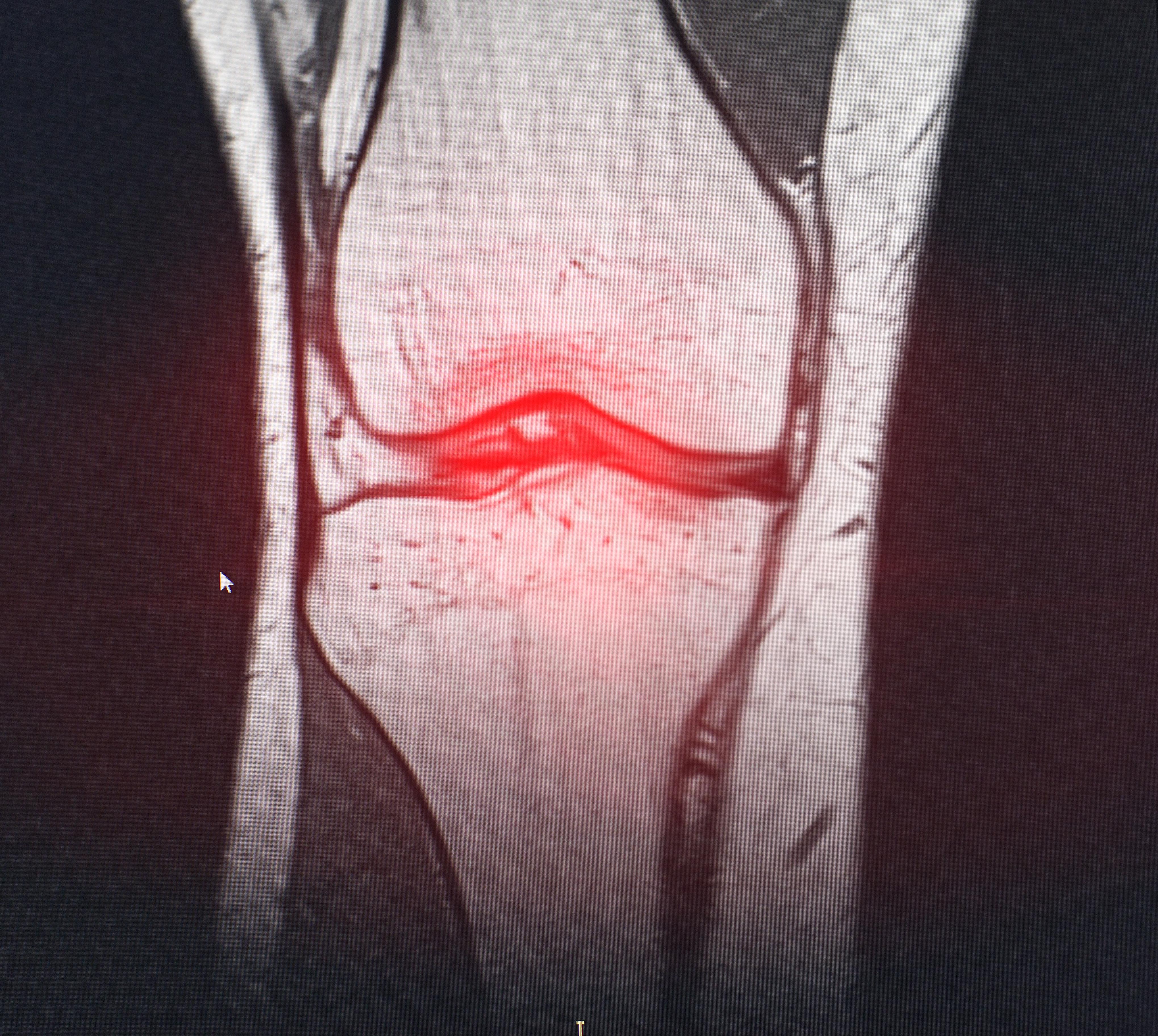 Artrosis: tres años de espera para ser diagnosticado