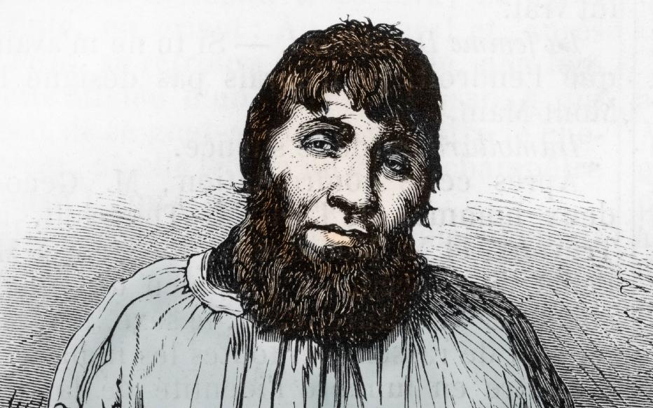Martin Dumollard, le premier tueur en série français arrêté en 1861