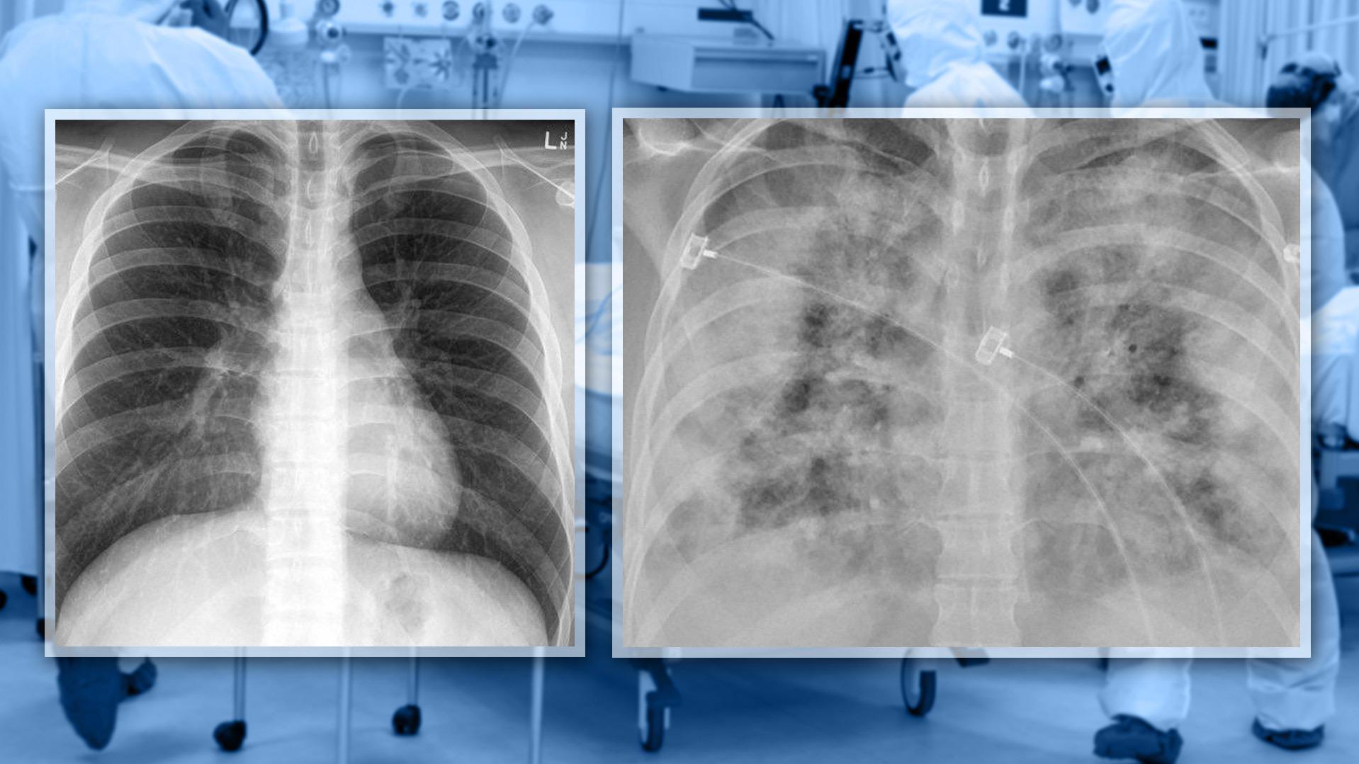 Geimpft vs. Ungeimpft: Bilder zeigen unterschiedliche Covid-Lungen