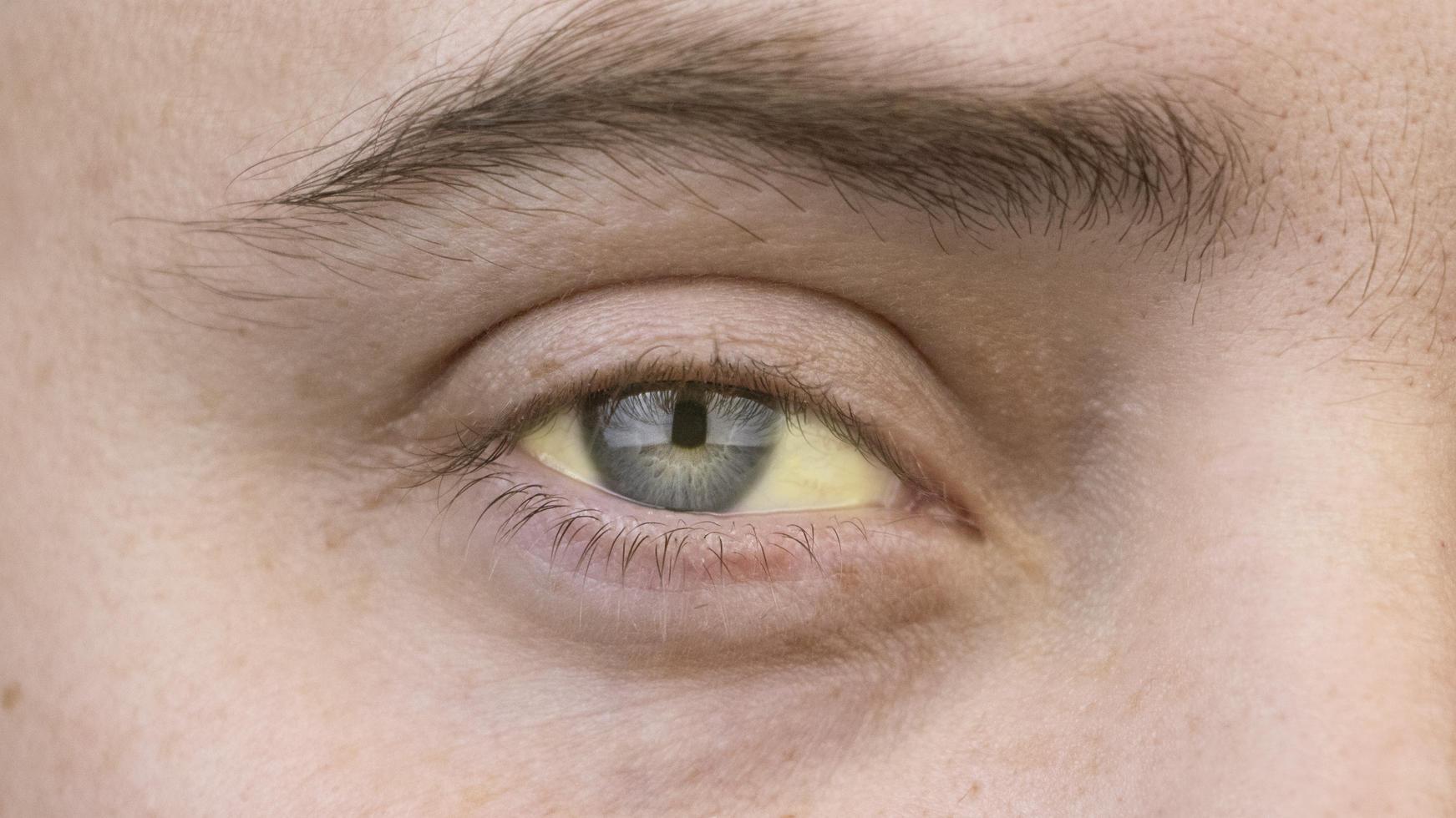 Um iris ring dunkler die Warum haben