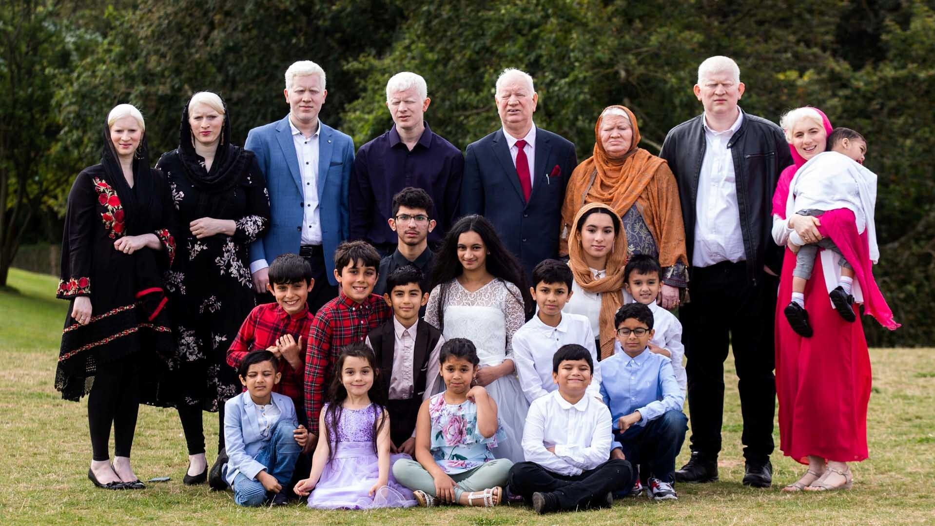 Größte Albinismus-Familie der Welt: So krass wird sie angefeindet!