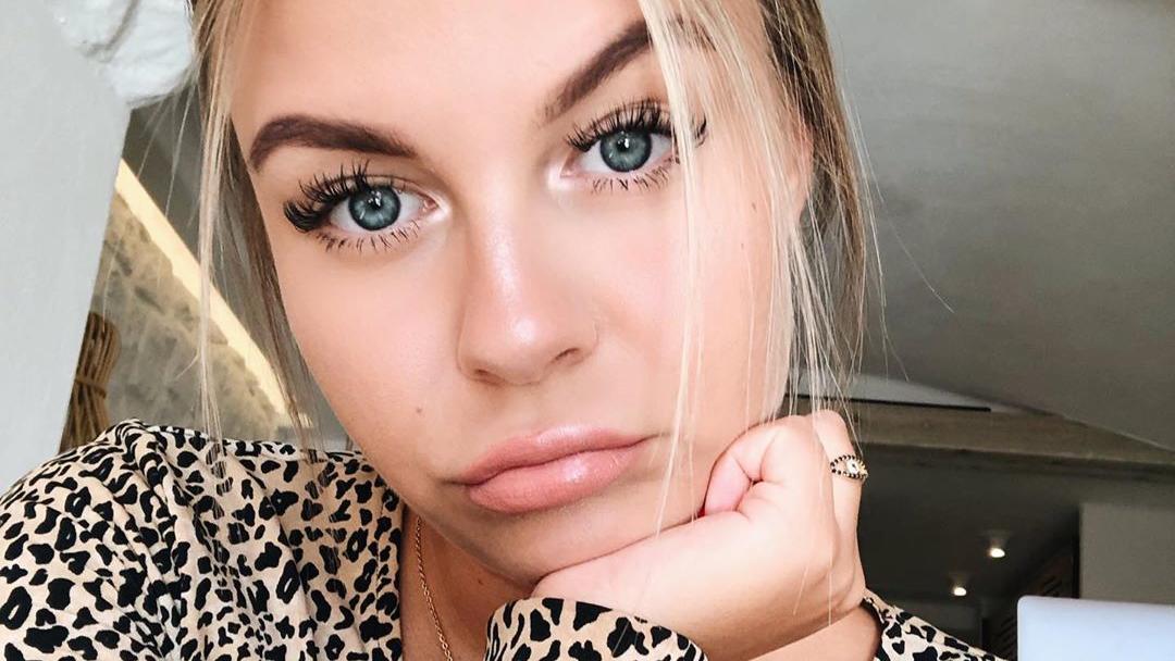 Youtuberin Dagi Bee enthüllt Details um Schönheits-OPs und kleinen Makeln