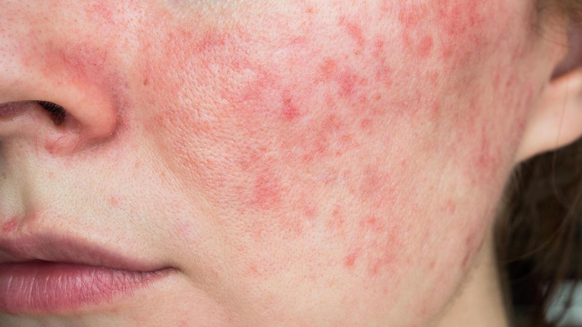 Hautkrankheit Rosazea: Die drei Stadien und was hilft