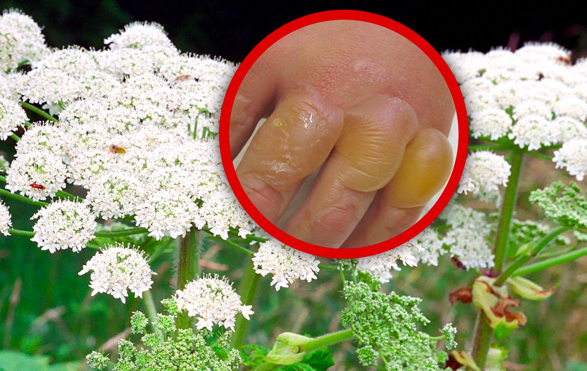 Verursacht schwerste Verbrennungen - Achtung, diese Giftpflanze wuchert überall